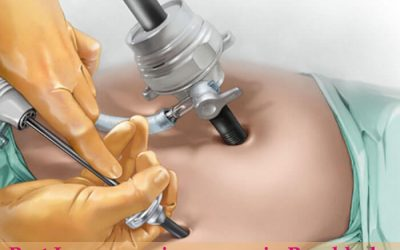 Best laparoscopic surgeon Panchkula